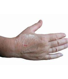 10 Pansements Tegaderm double peau Stériles 10 cm x 12 cm